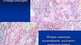 Диабетический гломерулосклероз