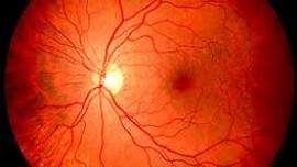 Изменения глазного дна