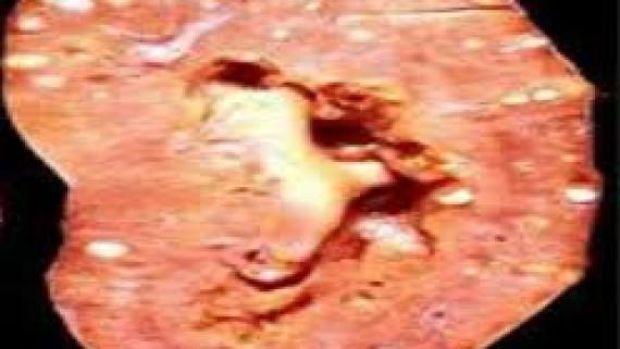 Апостематозный нефрит