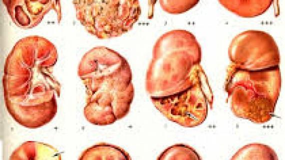 Лечение гнойничкового нефрита