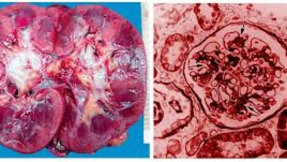 Патологическая анатомия острого нефрита