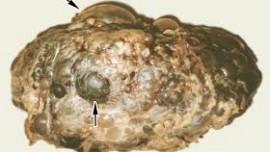Диагноз и дифференциальный диагноз острого нефрита