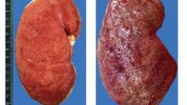 Этиология, патогенез и анатомия нефроза