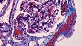 Течение и исход липоидного нефроза