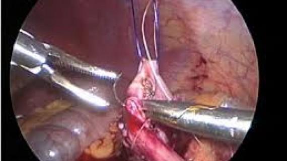 Лечение опухоли лоханки