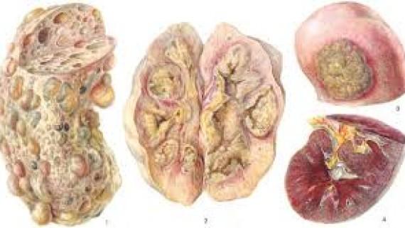 Патогенез острого нефрита