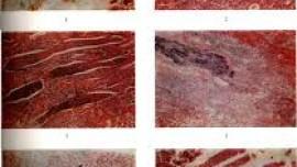 Этиология, патогенез и патологическая анатомия пиелитов
