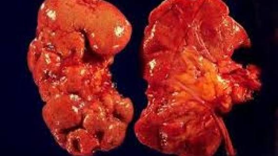 Клиника хронического пиелонефрита