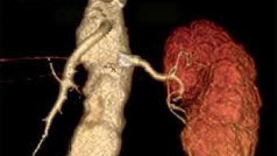 Течение болезни поликистозной почки