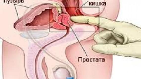 Лечение простатита.