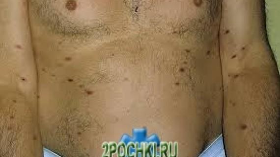 Острый парапсориаз — лечение, симптомы
