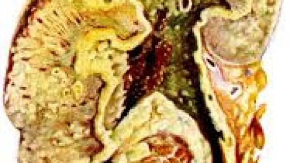 Симптоматология почечного туберкулеза