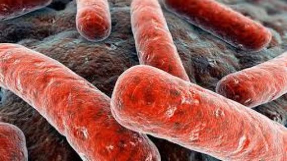 Диагноз при туберкулезе почки