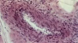 Поражение почек при узелковом периартериите